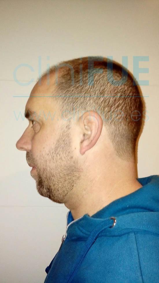 Emilio 38 Sevilla trasplante capilar cliniFUE 3 meses