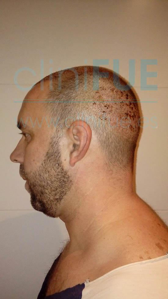 Emilio 38 Sevilla trasplante capilar cliniFUE 7 dias