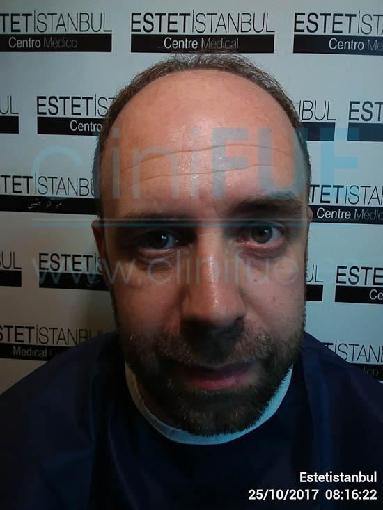 Emilio 38 Sevilla trasplante capilar cliniFUE Antes