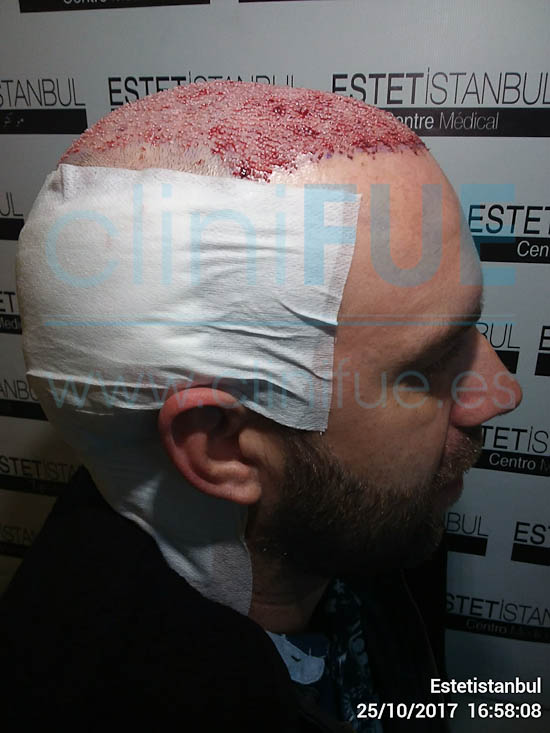 Emilio 38 Sevilla trasplante capilar cliniFUE Dia Operacion