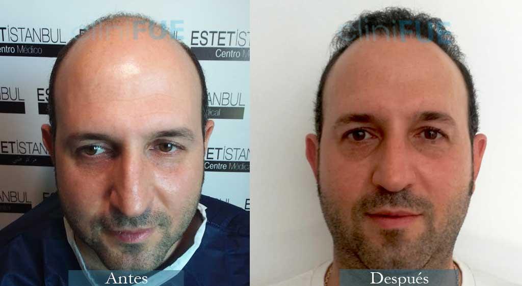Trasplante capilar de Ignasi 44 Años de Barcelona con cliniFUE