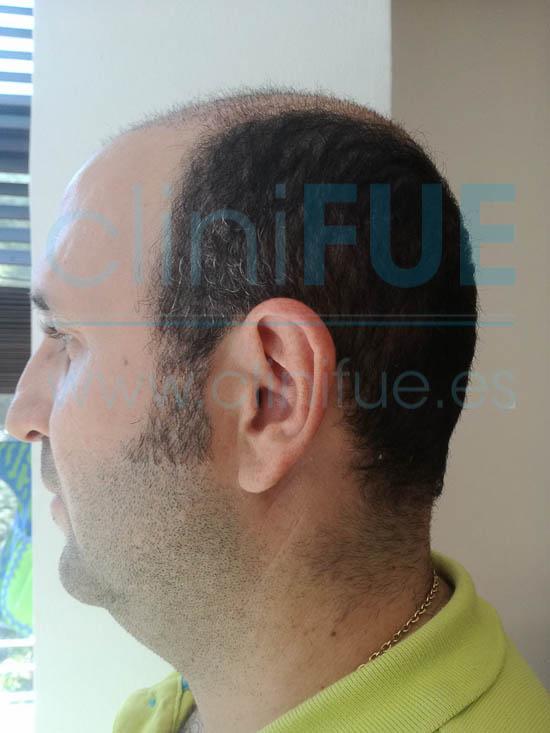 Ignasi 44 Barcelona injerto capilar turquia 1 mes