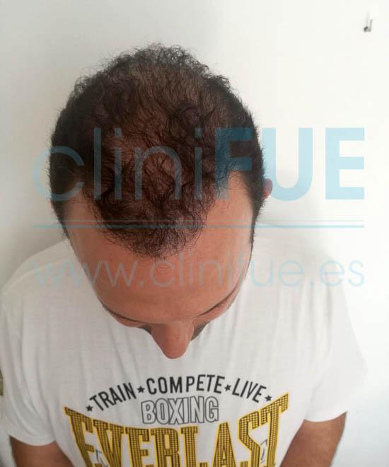 Ignasi 44 Barcelona injerto capilar turquia 12 meses