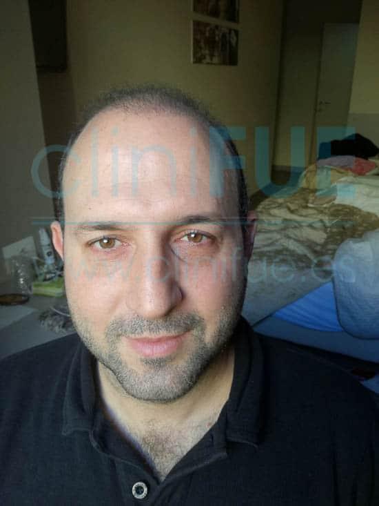 Ignasi 44 Barcelona injerto capilar turquia 3 meses