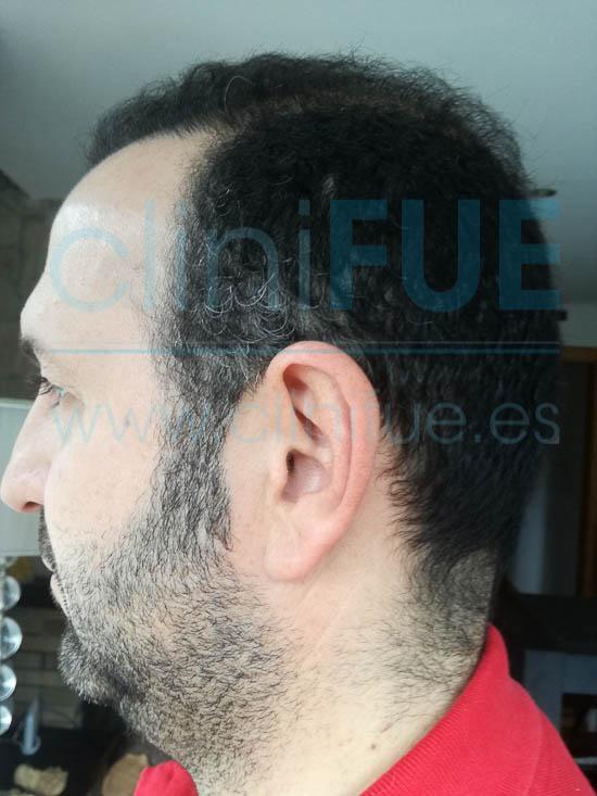Ignasi 44 Barcelona injerto capilar turquia 6 meses