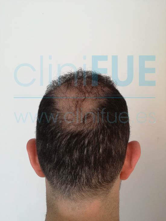 Ignasi 44 Barcelona injerto capilar turquia 9 meses