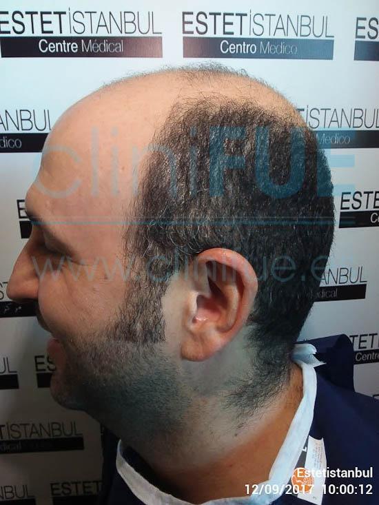 Ignasi 44 Barcelona injerto capilar turquia Antes