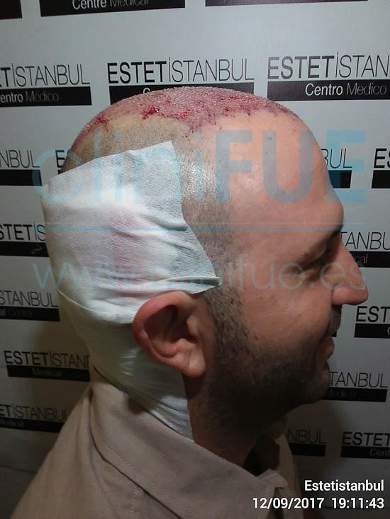 Ignasi 44 Barcelona injerto capilar turquia Dia Operacion