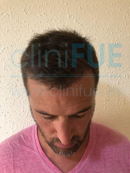 Josep 41 Barcelona injerto capilar turquia 6 meses