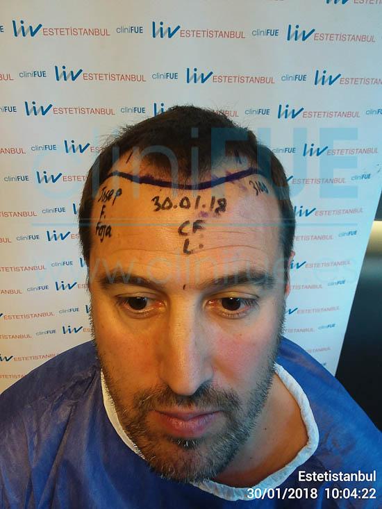 Josep 41 Barcelona injerto capilar turquia Dia Operacion