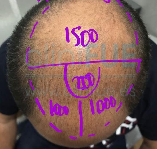 Juan José 45 Almeria injerto capilar turquia Antes
