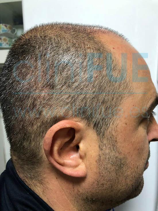 Juan José 45 Almeria injerto capilar turquia 15 dias