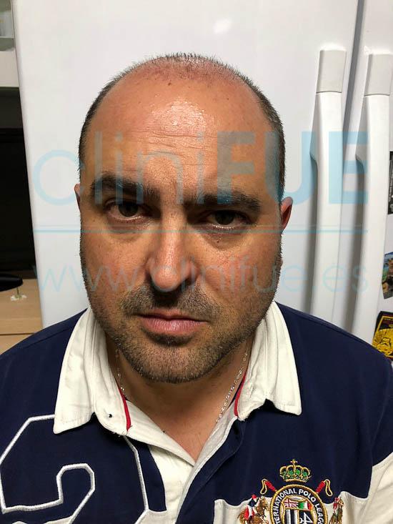 Juan José 45 Almeria injerto capilar turquia 1 mes