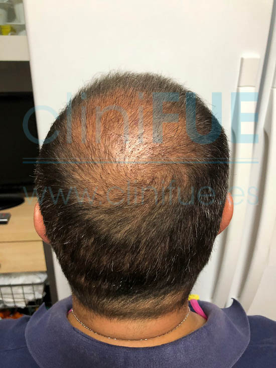 Juan José 45 Almeria injerto capilar turquia 3 meses
