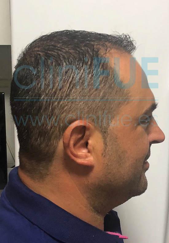 Juan José 45 Almeria injerto capilar turquia 6 meses