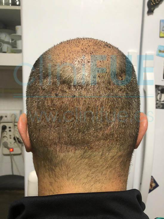 Juan José 45 Almeria injerto capilar turquia 7 dias