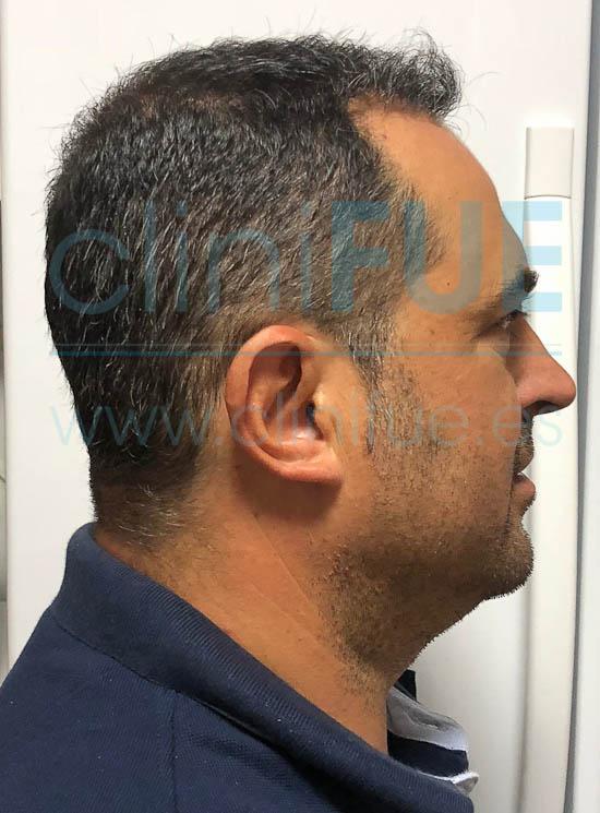 Juan José 45 Almeria injerto capilar turquia 7 meses