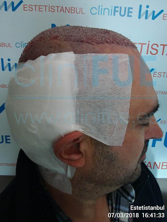 Juan José 45 Almeria injerto capilar turquia Dia Operacion