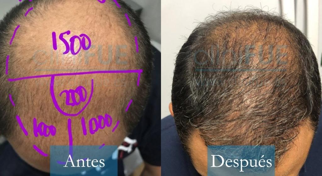 Juan Jose 45 Almeria antes y despues trasplante capilar cliniFUE