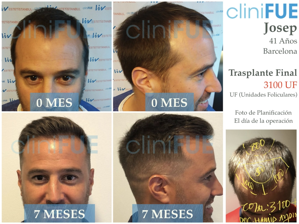 Josep 41 Barcelona injerto capilar turquia 7 meses