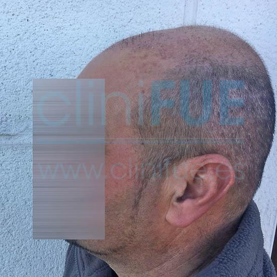 Oscar 40 Caceres injerto de pelo turquia 1 mes