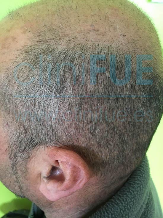Oscar 40 Caceres injerto de pelo turquia 2 meses