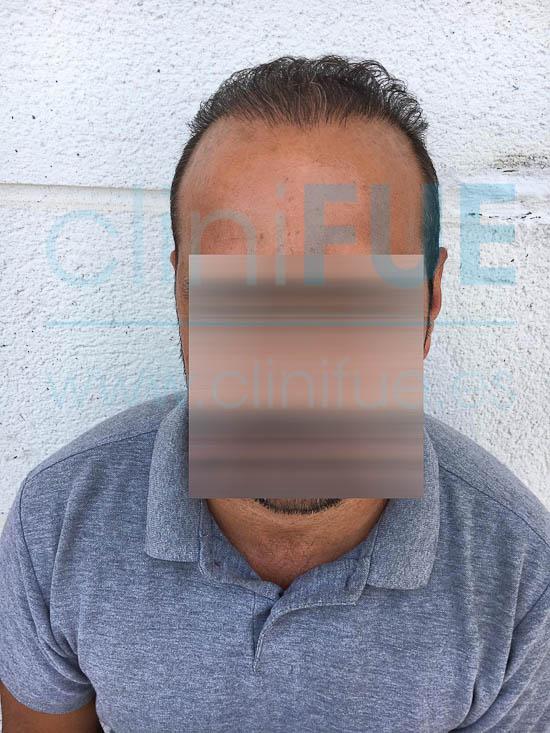 Oscar 40 Caceres injerto de pelo turquia 9 meses
