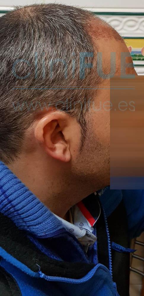 Raul 38 Palencia trasplante pelo turquia 1 mes