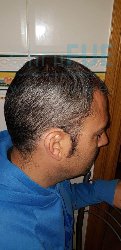 Raul 38 Palencia trasplante pelo turquia 3 meses
