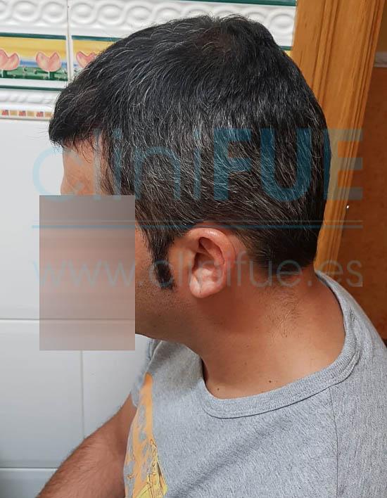 Raul 38 Palencia trasplante pelo turquia 6 meses