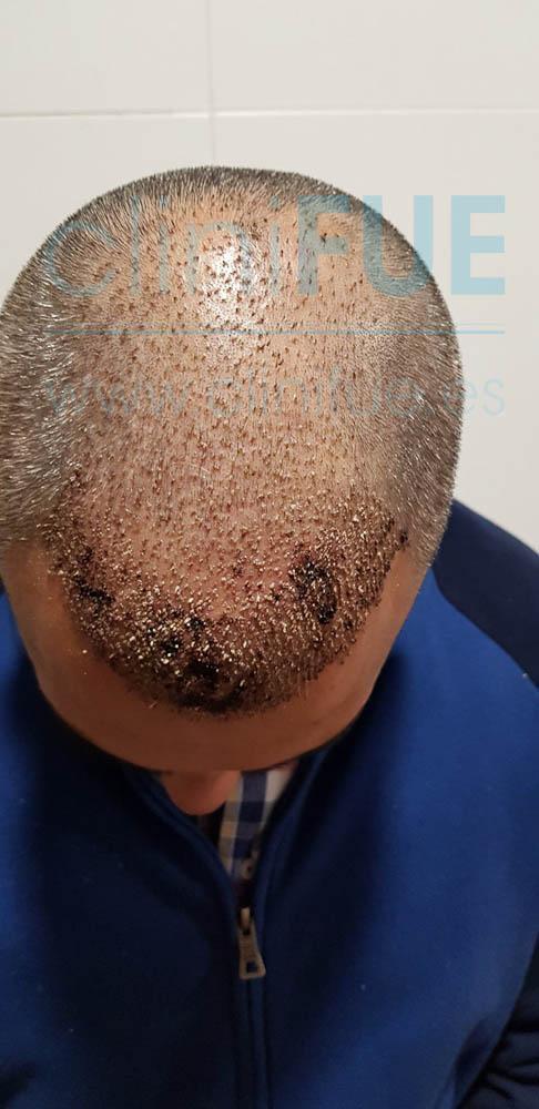 Raul 38 Palencia trasplante pelo turquia 7 dias