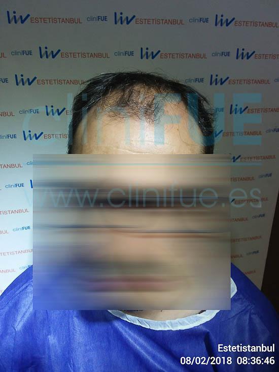 Raul 38 Palencia trasplante pelo turquia Antes