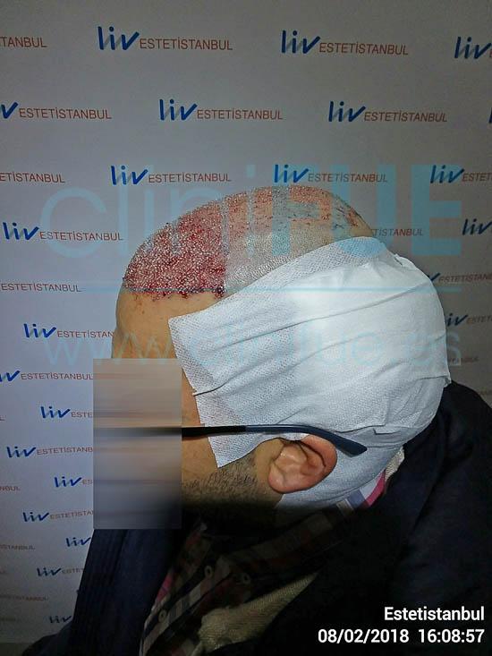 Raul 38 Palencia trasplante pelo turquia Dia Operacion