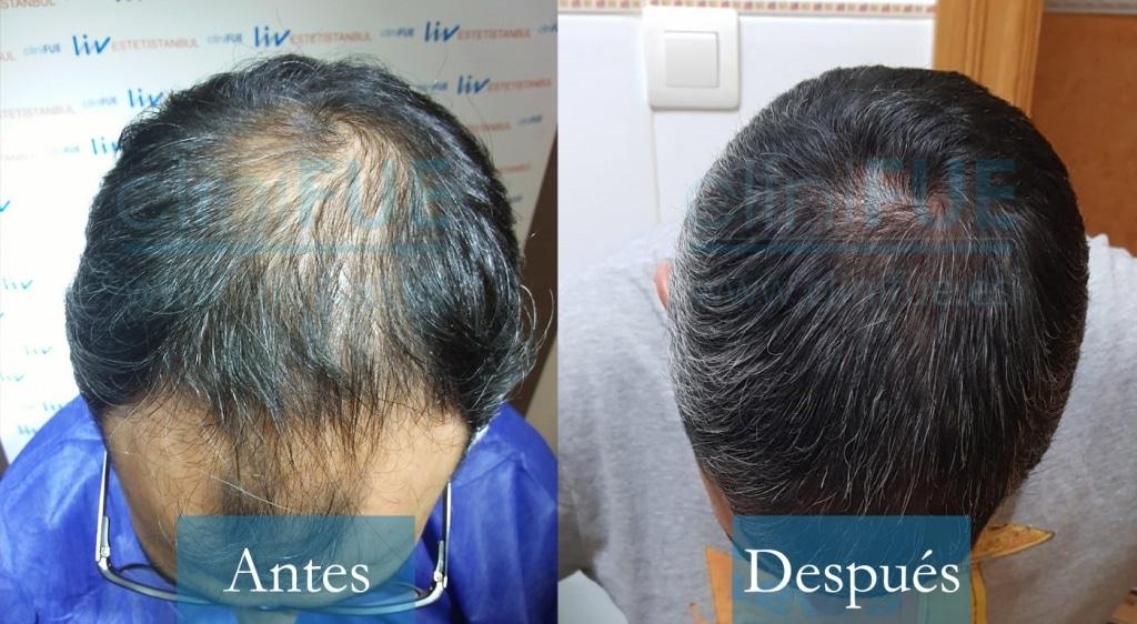 Raul 38 Palencia_ antes y despues trasplante capilar cliniFUE