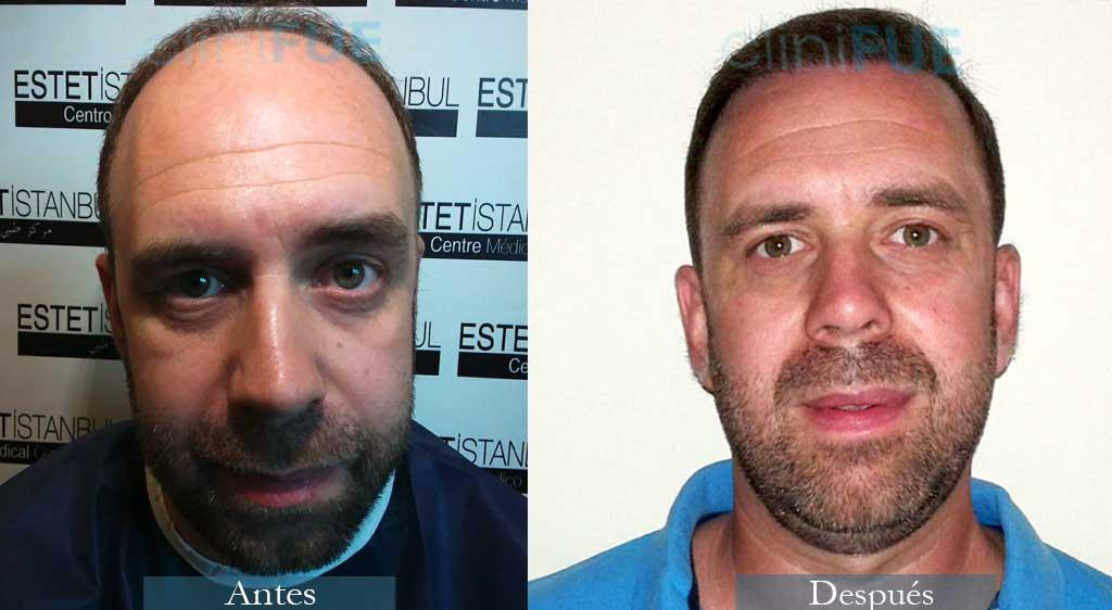 Trasplante capilar de Emilio 38 Años de Sevilla con cliniFUE