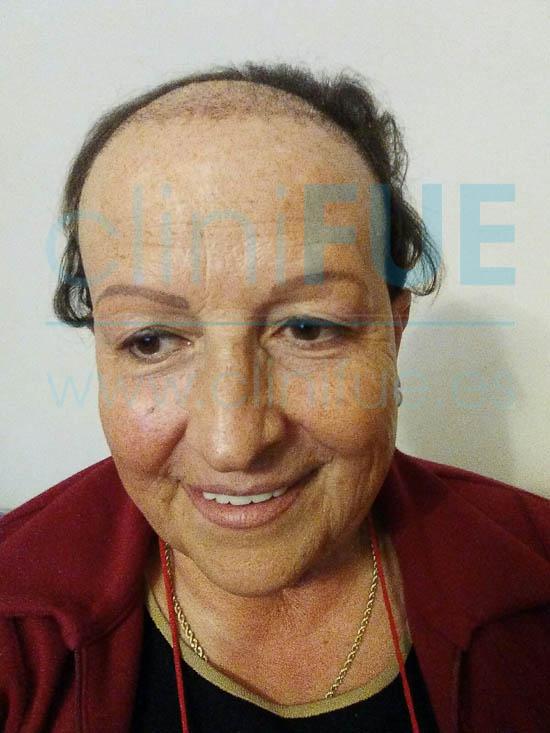 Felisa 63 Cantabria injerto capilar mujer 1 mes