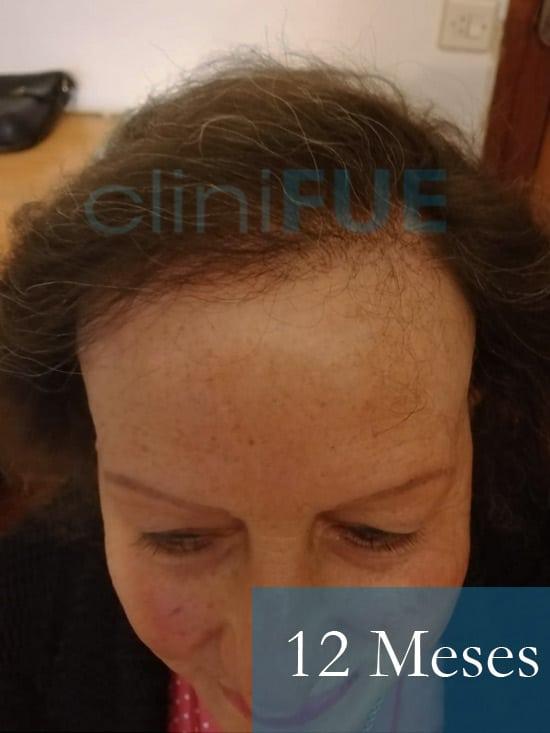 Felisa 63 Cantabria injerto capilar mujer 12 meses