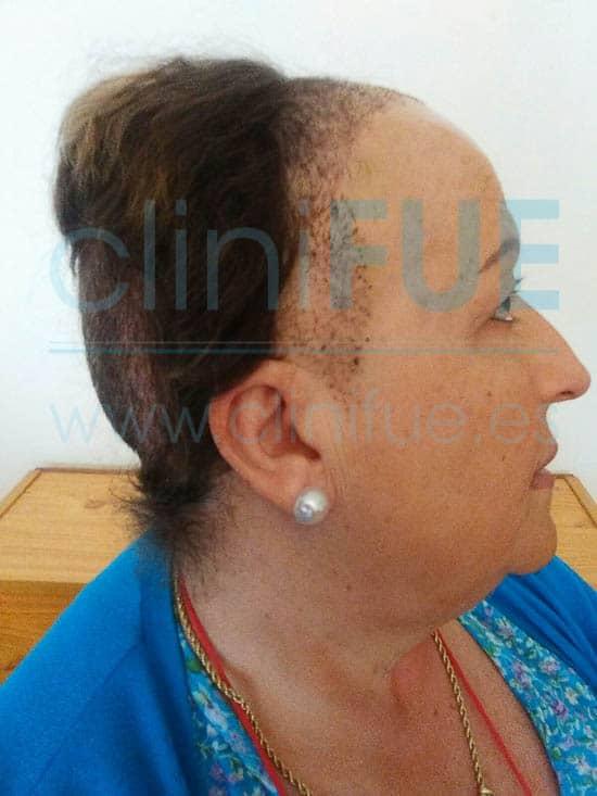 Felisa 63 Cantabria injerto capilar mujer 15 Dias