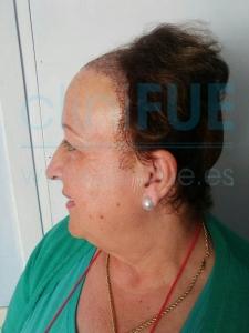 Felisa 63 años Cantabria trasplante capilar turquia 7 dias