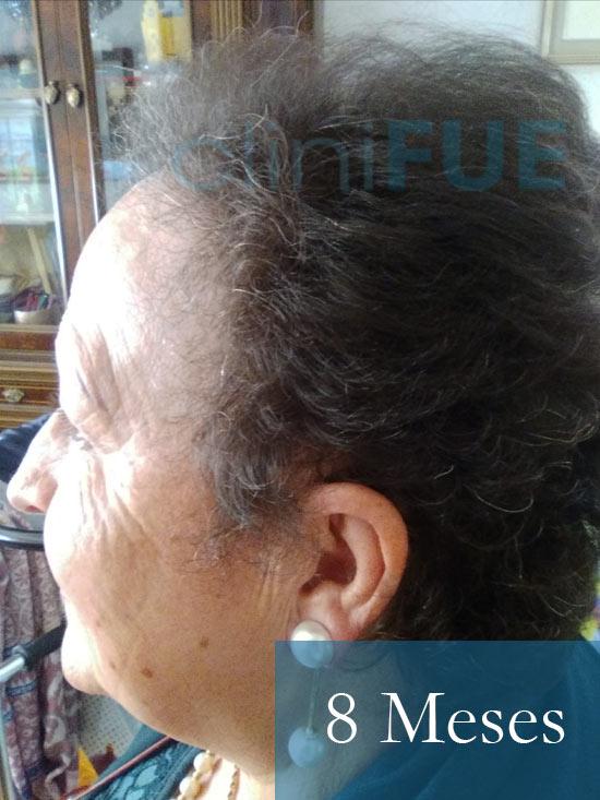 Felisa 63 Cantabria injerto capilar mujer 8 meses