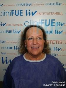 Felisa 63 años Cantabria trasplante capilar turquia Antes