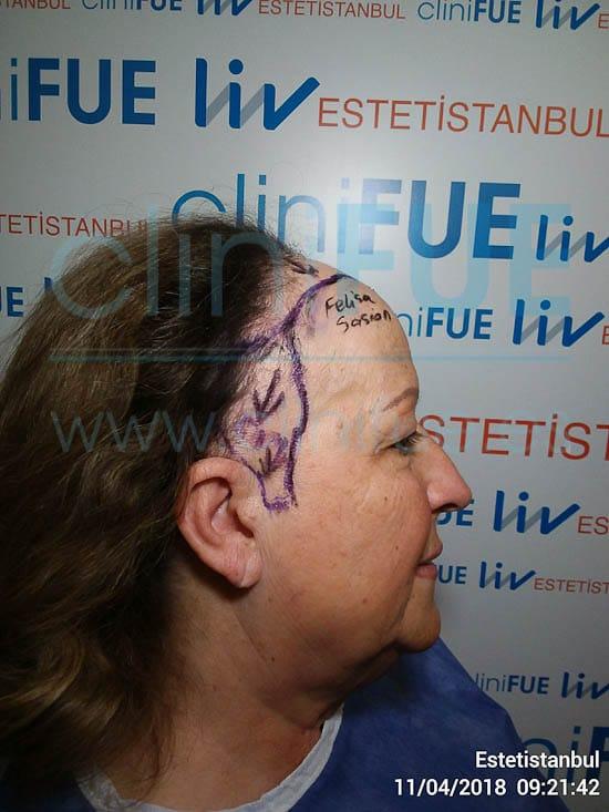 Felisa 63 años Cantabria trasplante capilar turquia Dia Operacion