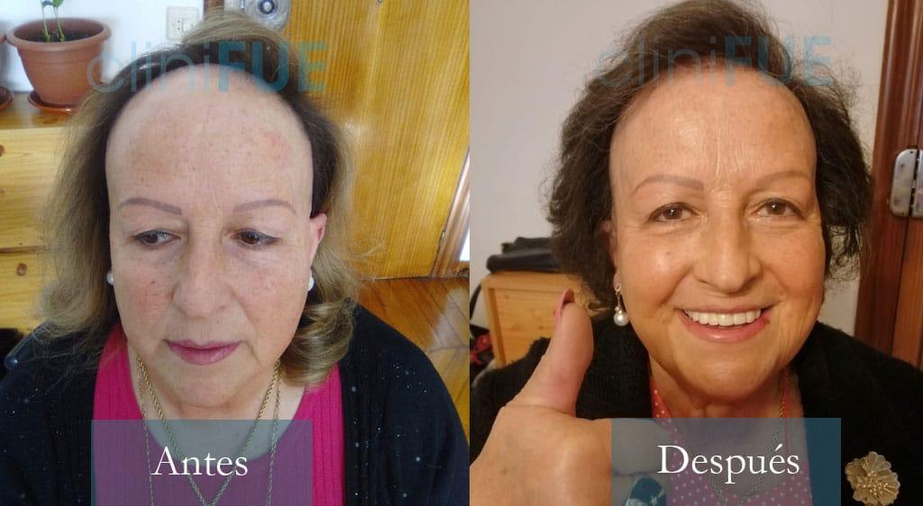 Trasplante capilar de Felisa 63 Años de Cantabria con cliniFUE