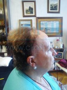 Felisa 63 Cantabria injerto capilar mujer 3 meses