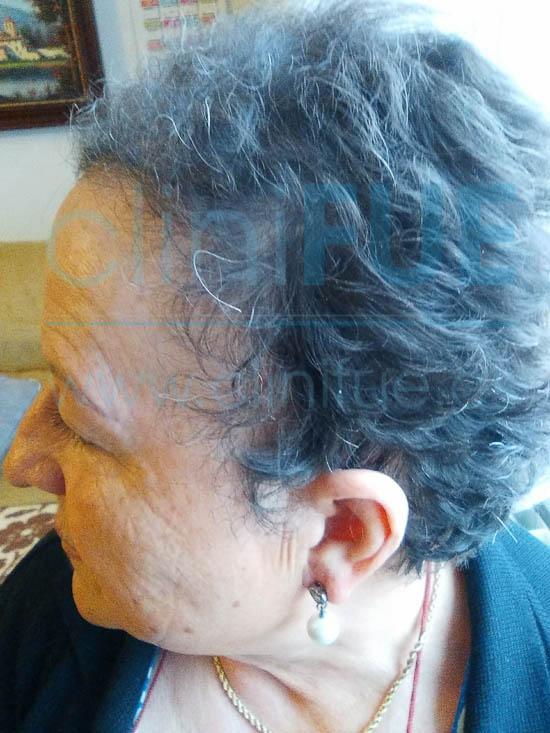 Felisa 63 Cantabria injerto capilar mujer 6 meses
