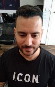 Manuel implante capilar Turquia 12 meses 1