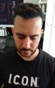 Manuel implante capilar Turquia 12 meses 5