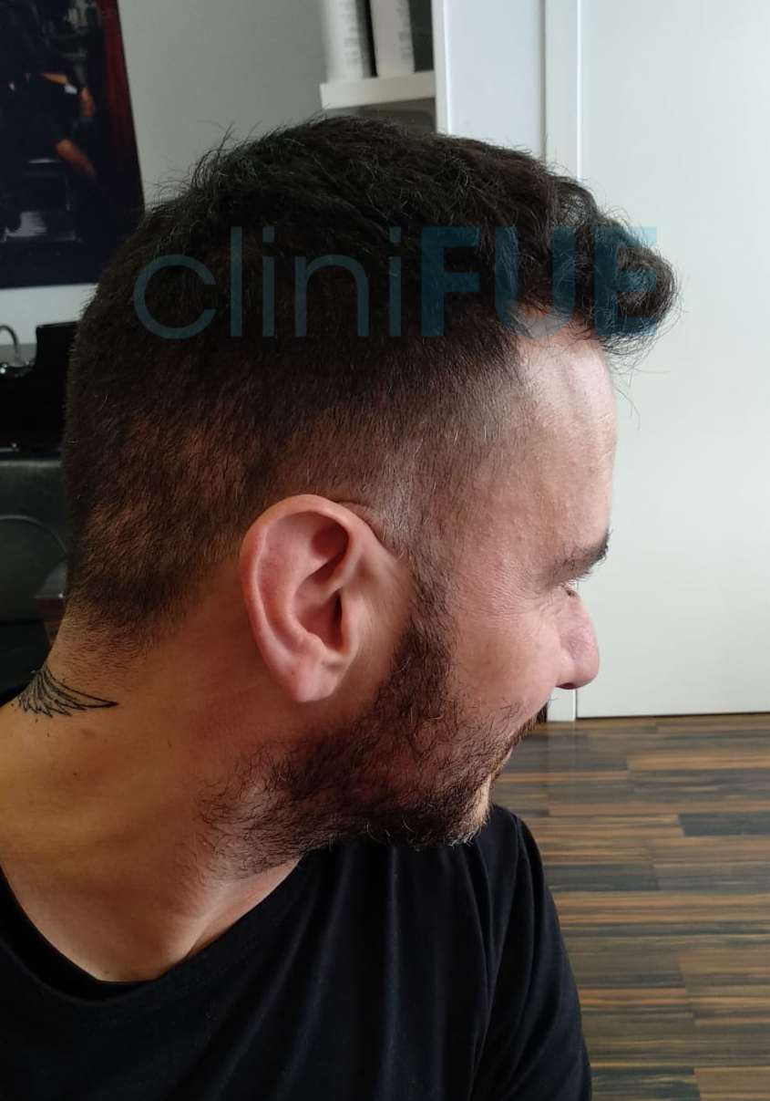 Manuel implante capilar Turquia 12 meses 3