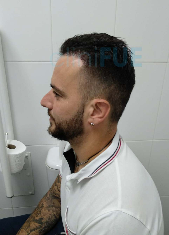 Manuel 35 Elche injerto capilar turquia 6 meses