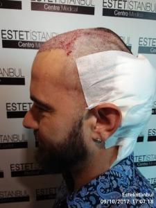 Manuel implante capilar Turquia Día de la operación operado 3